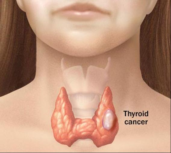 tiroid kanseri ankara