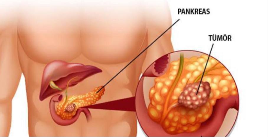 pankreas kanseri ankara