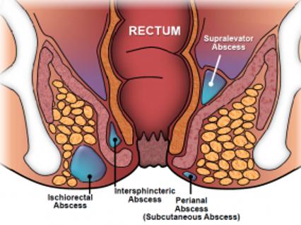 anal apse tedavisi